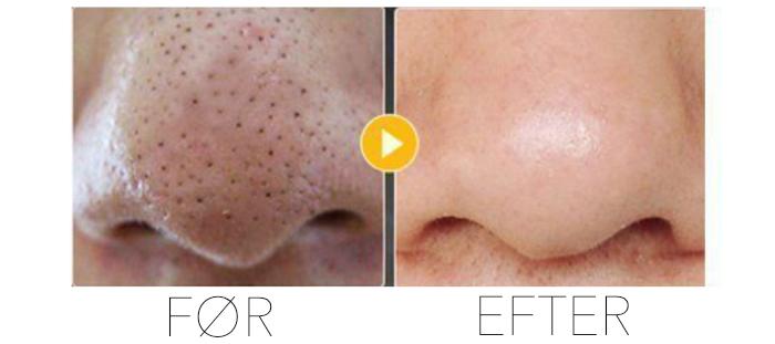 Læs hvad hudorme er og behandl dem med en blackhead vacuum hudorme suger.